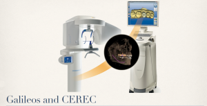 CEREC and Gali front of brochure